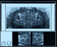 Radiographie de dentier d'enfants Photographie stock libre de droits