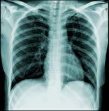 Radiographie de la poitrine Photographie stock libre de droits