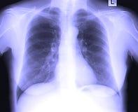 Radiographie de la poitrine Images libres de droits