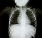 Radiographie de la poitrine de jeune garçon   Image libre de droits