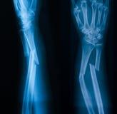 Radiographiez l'image de l'avant-bras cassé, de l'AP et de la vue de loblique photo libre de droits