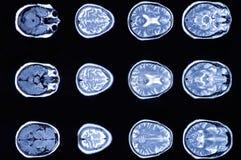 Radiographiez l'image de la tomodensitométrie de cerveau, représentation du cerveau photo libre de droits