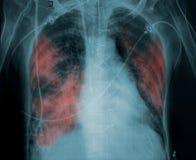 Radiographiez la photo d'un patient présentant la pathologie de poumon illustration stock