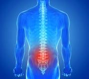 Radiographiez la vue de la douleur d'épine - traumatisme de vertèbres Images stock
