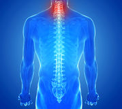 Radiographiez la vue de la douleur d'épine - traumatisme de vertèbres Photos stock