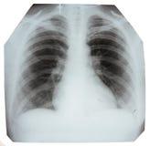Radiographiez le ramassage Image libre de droits