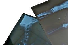 Radiographs obrazy stock