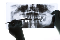 Radiography. A closeup of a panoramic radiography, a dentist holding it in her hand, pointing with a probe Stock Photos