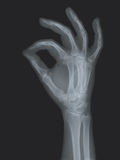 Radiography. Of the right hand making a gesture Royalty Free Stock Photo