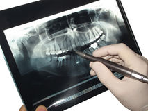 Radiography. Dentist who looks a snapshot of a patient Stock Image