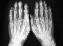 Radiography, of both hands, sever arthritis. Extensive proliferative arthritis (osteoarthritis) of both hands, small finger joints arthritis royalty free stock photography
