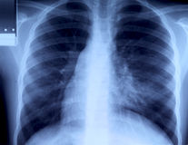 Radiography of chest Stock Photos