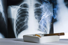 Radiography and cigarettes Royalty Free Stock Photos