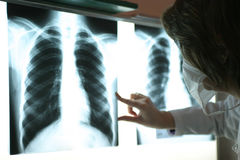 Radiography. A doctor hand study a radiography Royalty Free Stock Image