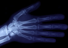 Radiography of hand. A radiography of right hand Royalty Free Stock Images