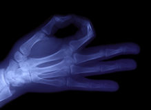 Radiography of hand Royalty Free Stock Images