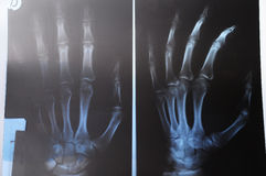 Radiography of hand Stock Photo