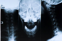 Radiography of the head and neck. X-ray to the head and neck shows that there are no trauma Stock Photo