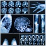 Radiography of Human Bones. X-ray and MRI scans Stock Photo