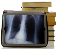 Radiography. A radiography seen in the screen of a tablet Royalty Free Stock Images