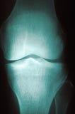 Radiography Series 3 Royalty Free Stock Image