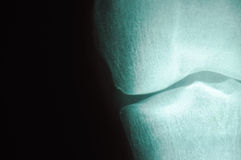 Radiography Series 4. An x-ray can provide insights on what is happening stock photography