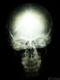 Radiography of skull Stock Photos