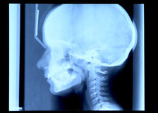 Radiography of skull Royalty Free Stock Photo