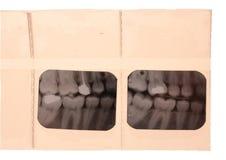 Radiograpy anatomie van de tand de tandtandarts Royalty-vrije Stock Afbeelding