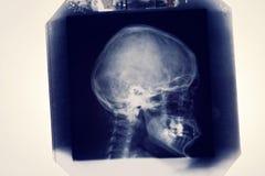 Radiolody image X-ray Royalty Free Stock Photo