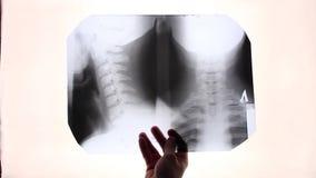 Radiologhåll i hans handröntgenstråle arkivfilmer