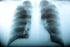radiologia Fotografia Stock