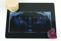 Radiologia dentaria, cavità della mandibola e protesi monobloc Fotografia Stock