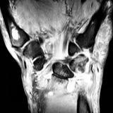 Radiological mri exam wrist  anatomy pathology. There is MRI radiological exam of pathology of wrist , where distal radiolunar joint effusion with synovitis and Royalty Free Stock Image