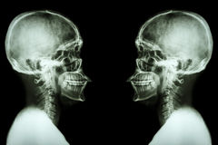 Radiologiczna czaszka i karkowy kręgosłup Fotografia Stock