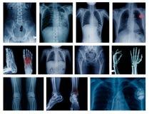 Radiologiczna duża kolekcja obrazy royalty free