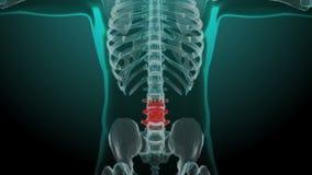 Radiologiczna zredukowana animacja niski kręgosłupa ból z powrotem ilustracji