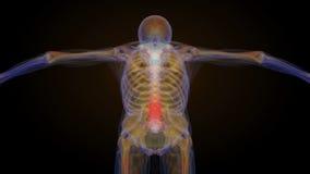 Radiologiczna zredukowana animacja niski kręgosłupa ból z powrotem ilustracja wektor