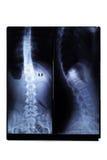 radiologiczny film zdjęcia stock