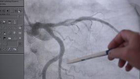 Radiologiczny istny kierowy bicie w akci na ekranie komputerowym zbiory wideo