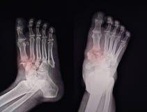 Radiologiczny Nożny znalezienie przełam zdjęcie royalty free