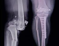 Radiologiczny nogi 2 widoku seansu przełam z poczta operaci wewnętrznym fiksacja zbyt obraz stock