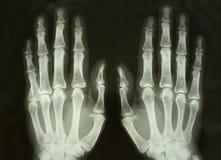 Radiologiczny obrazek zdjęcie stock