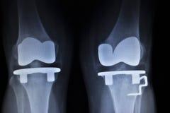 Radiologiczny orthopedics obraz cyfrowy kolanowe łękotka wszczepu protetyki Obraz Royalty Free