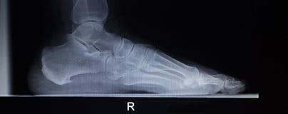 Radiologiczny orthopedics obraz cyfrowy nożny urazu ładunku ciężaru peleng Fotografia Royalty Free