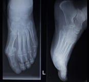 Radiologiczny orthopedics obraz cyfrowy nożnego urazu anterior posterior AP Obraz Stock