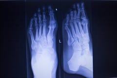 Radiologiczny orthopedics obraz cyfrowy nożnego urazu anterior posterior AP Zdjęcie Royalty Free