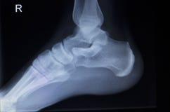 Radiologiczny orthopedics obraz cyfrowy nożny uraz Obrazy Royalty Free