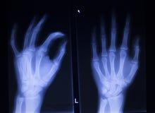 Radiologiczny orthopedics traumatologii obraz cyfrowy ręka palca uraz Zdjęcie Stock