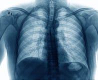 Radiologiczny wizerunek klatki piersiowej dziecko Zdjęcia Stock